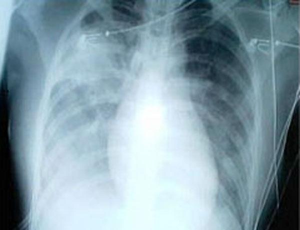 Røntgenbillede af patient der undersøges for lungebetændelse. I et stigende antal asiatiske lufthavne holdes der øje med passagerer, der kan have symptomer på den kinesiske Wuhan-lungebetændelse, som ikke regnes for dødelig i samme omfang som SARS-epidemien i 2002-3. Arkivfoto via Wikipedia.